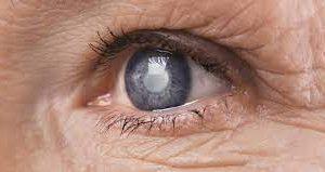 vitamin c chống lão hóa mắt